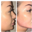 Advanced Dermal Filler with Cannula  2 days